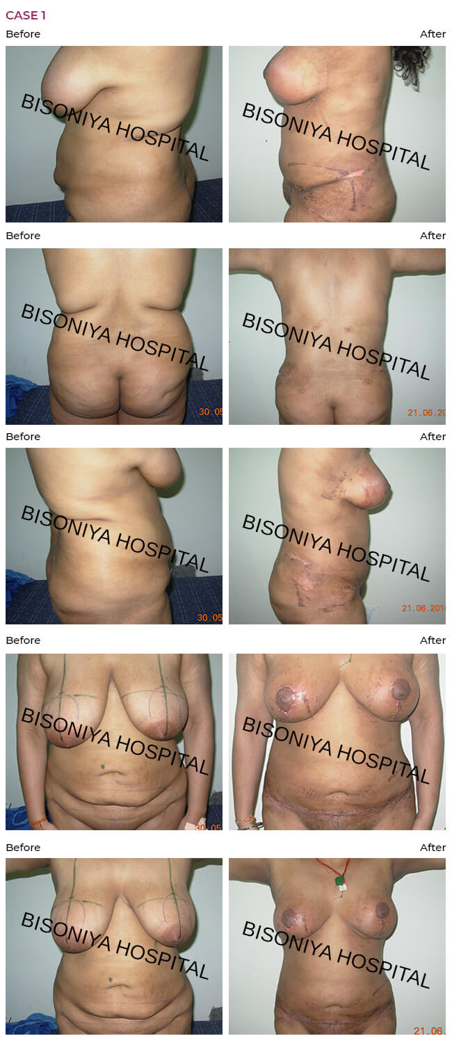 Abdominoplasty, breast reduction, liposuction in single stage