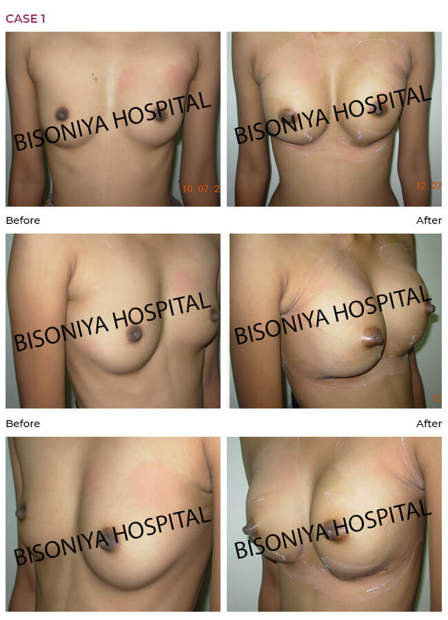 Breast Enlargement case1