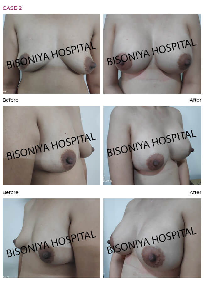 Breast Enlargement case2