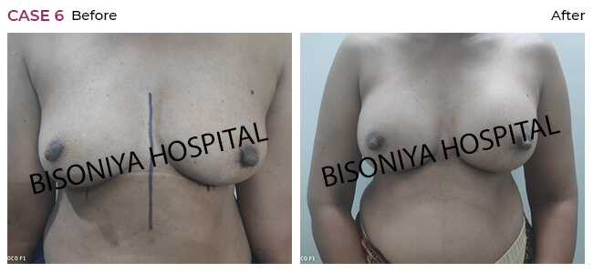 Breast Enlargement case6