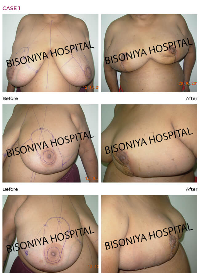 Breast Reduction case1