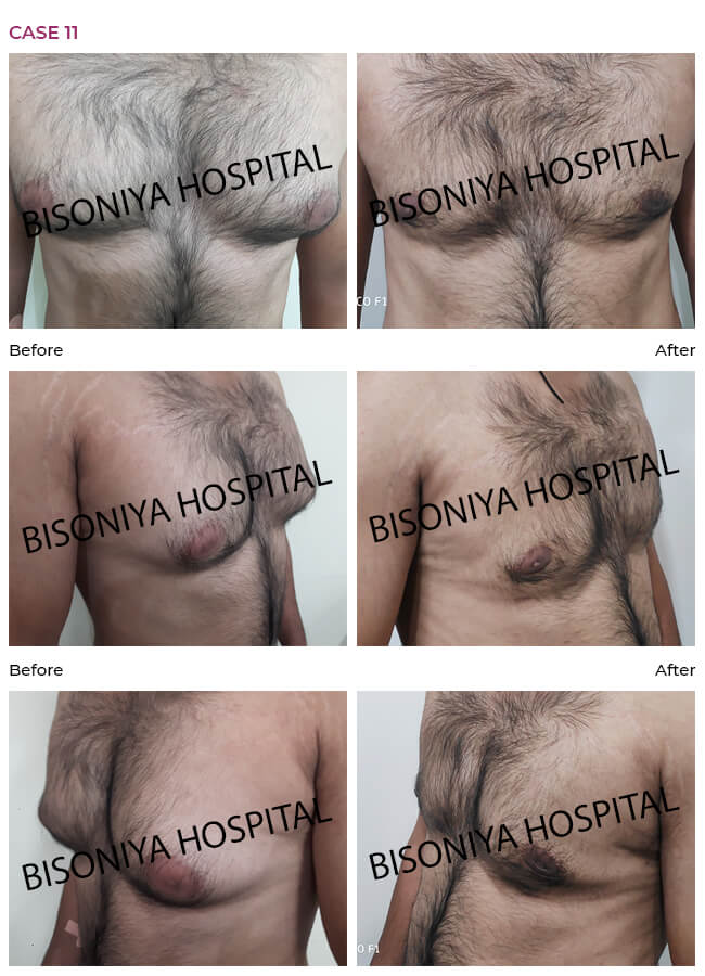 Gynecomastia - Bisoniya Hospital