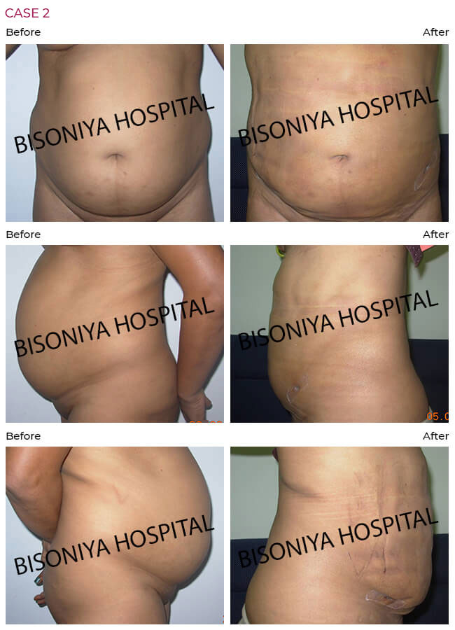 Liposuction - Bisoniya Hospital