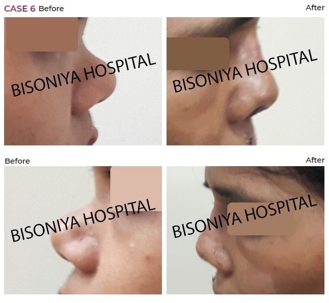 Rhinoplasty - Bisoniya Hospital